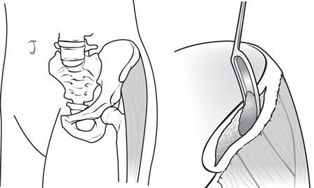 جراحی دیسک گردن 2