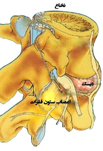 درمان دیسک کمر 1