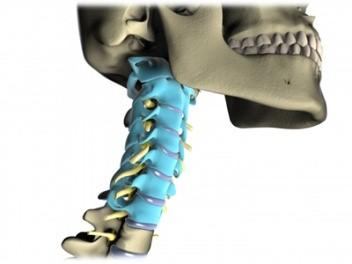 درمان رگ به رگ شدن گردن 1