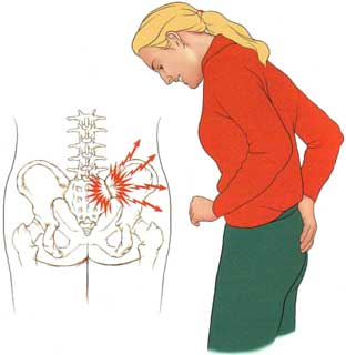 SI-joint-pain