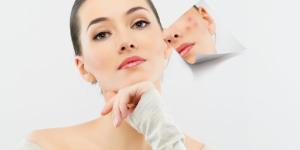 acne-skin-care-660x330