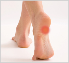 heel-pain-img